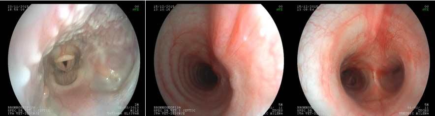 bronhoskopija