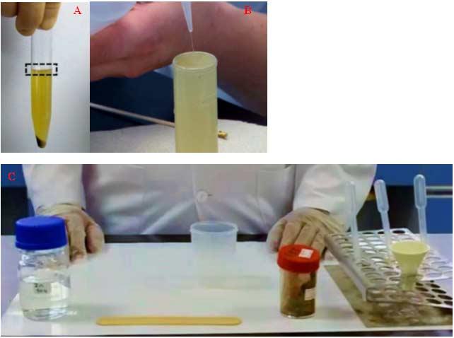 Slika 5. A.Ukoliko je vršena flotaciona metoda uz centrifugiranje sloj koji se koristi za pretragu je naznačen na slici B. Flotacija bez centrifugacije uzorka, na površinu skoro prepunjene epruvete se stavlja pokrovna ljuspica koja stoji 20 minuta, a zatim se prenosi na mikroskopski preparat C. Materijal potreban za pripremu mikroskopskog preaparata flotacionom metodom