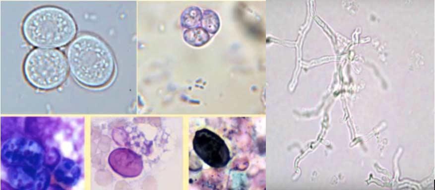 Slika 10. A. Prototheca (alga) i bacili bakterija B. Hife gljiva C. Kandida