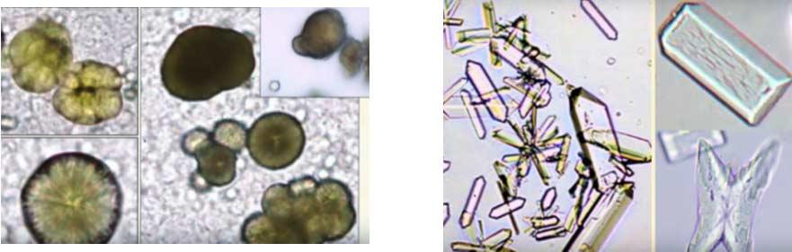 Slika 11. Kristalurija   Slika 12. Struvitni kristali