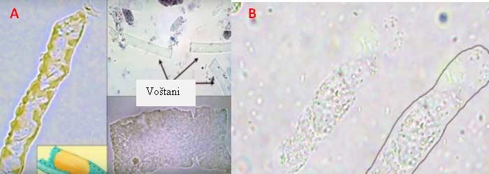 Slika 9. A. Voštani cilindri  B. Hijalini cilindri